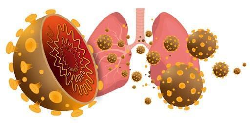 Các triệu chứng Covid-19 gây viêm phổi và suy hô hấp cấp tính